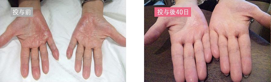幹細胞再生治療の症例_掌蹠膿疱症