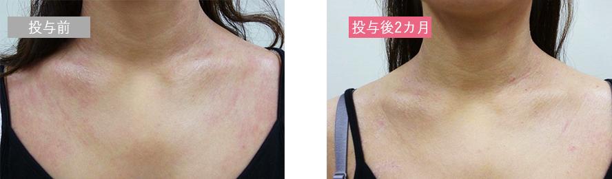 幹細胞再生治療の症例_アトピー性皮膚炎_デコルテ