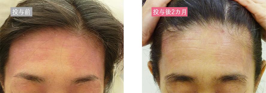 幹細胞再生治療の症例_アトピー性皮膚炎_おでこ